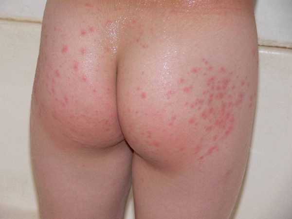 rash-on-bottom